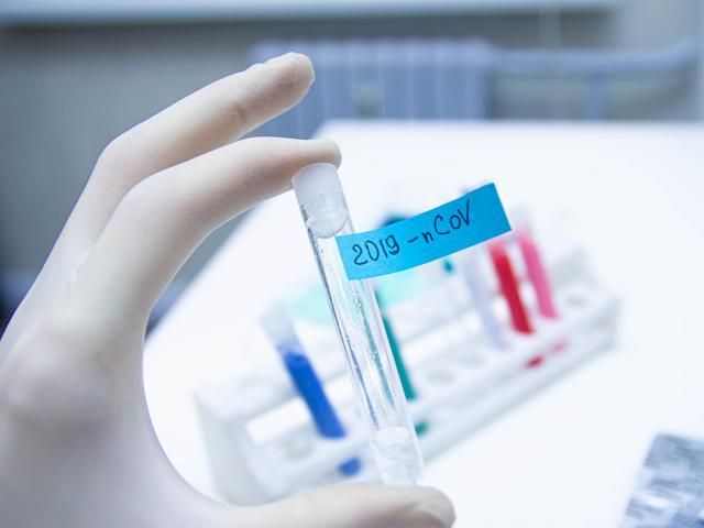 coronavirus-diagnostic-test.png